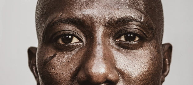 Close-up of a Black man with a scarred cheek.