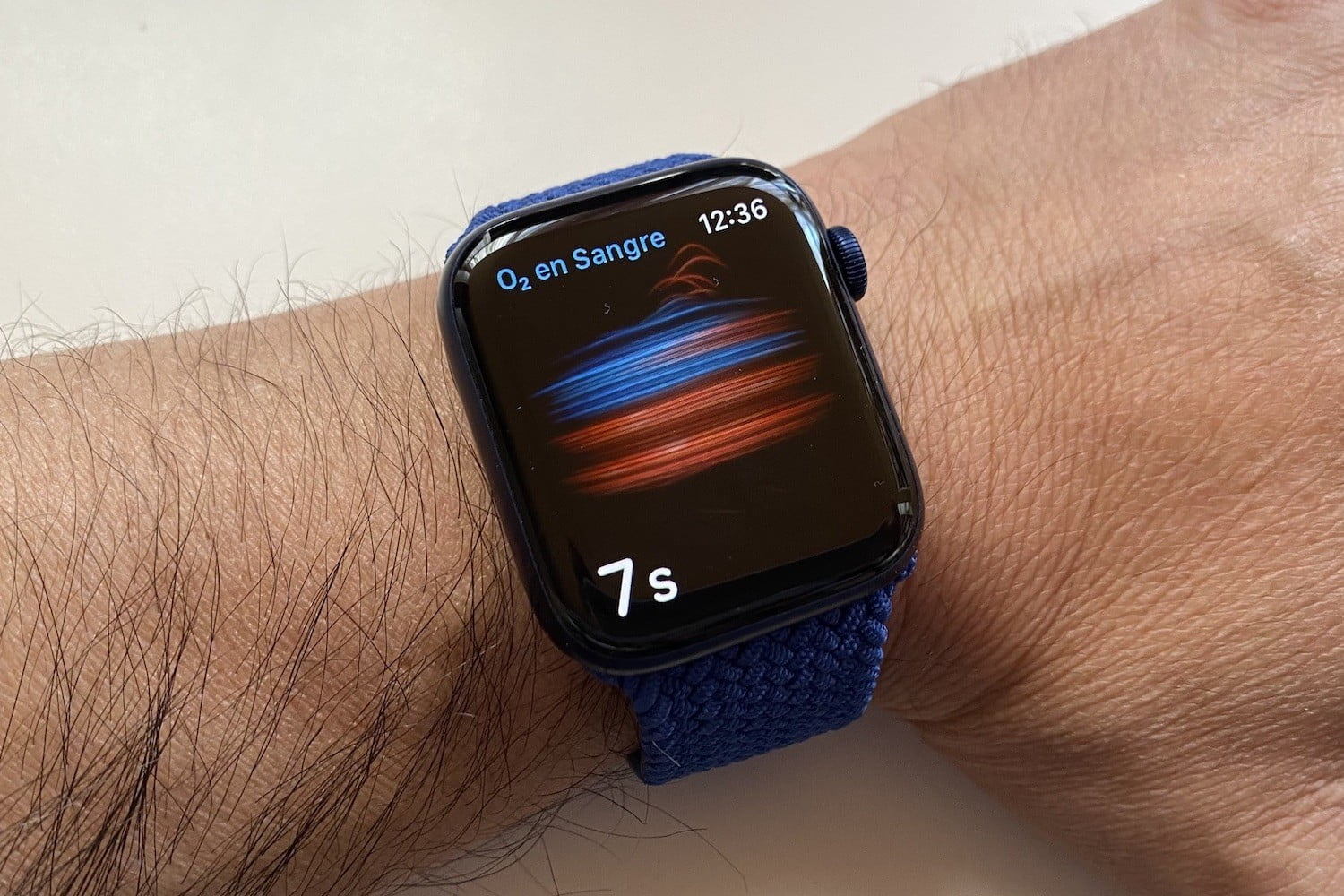 revision apple watch series 6 1