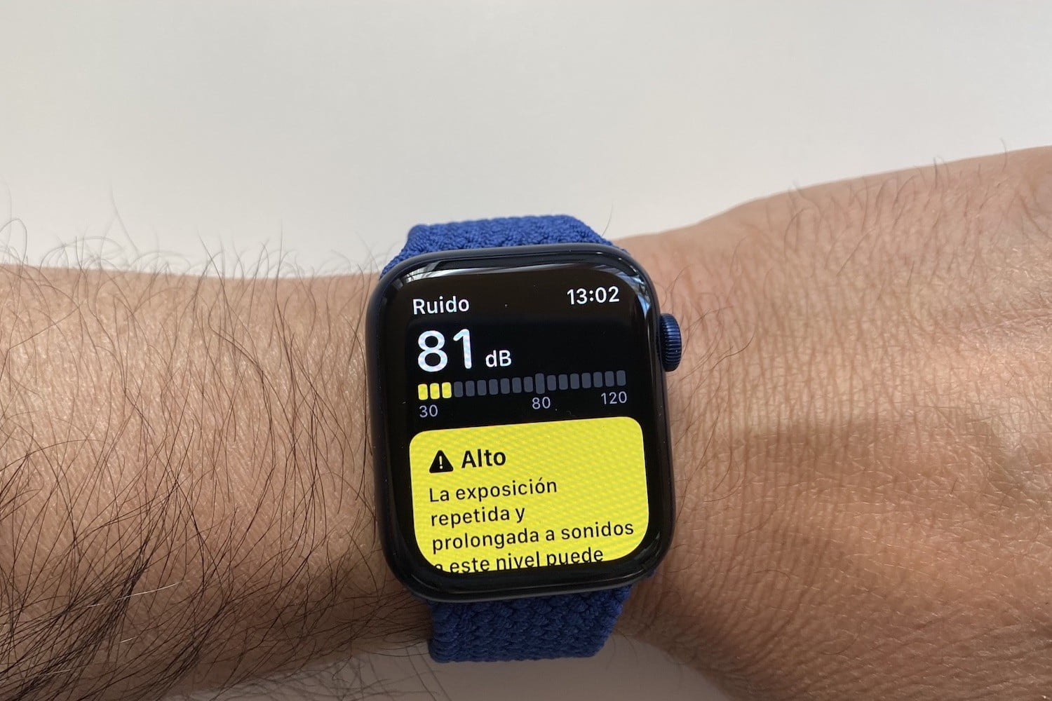 revision apple watch series 6 3