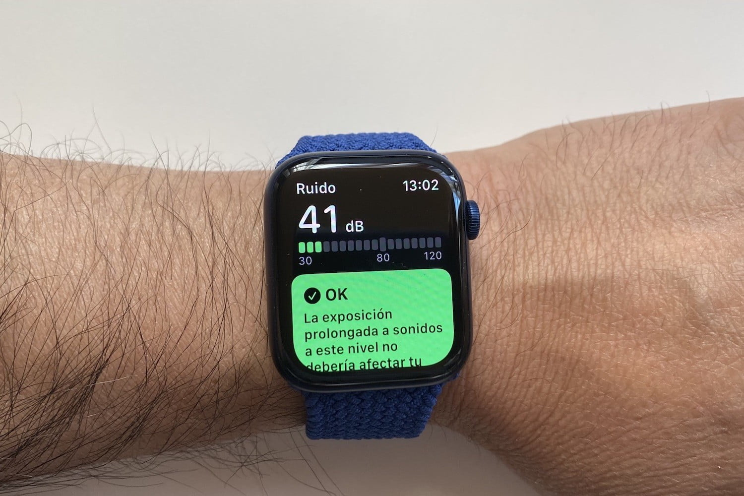 revision apple watch series 6 4